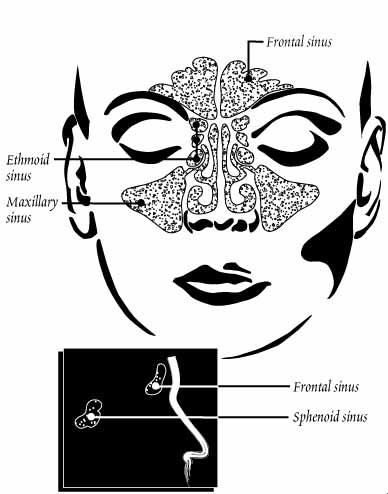 Sinuses - ENT Docs